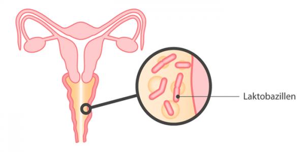 zaselenie-laktobakteriy-vo-vlagalishe