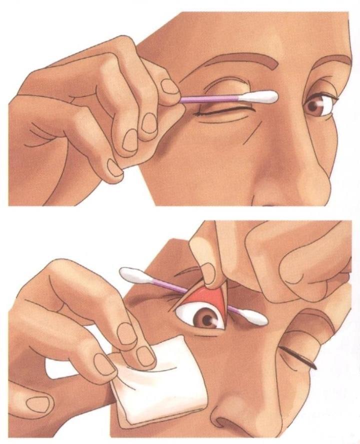 Как самостоятельно вытащить из глаза соринку
