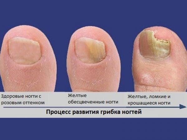 Виды грибков на ногтях ног