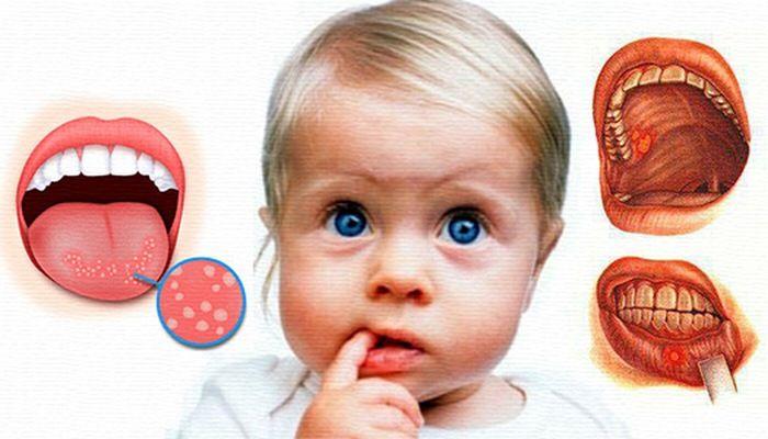 Как вылечить стоматит во рту в домашних условиях у ребенка