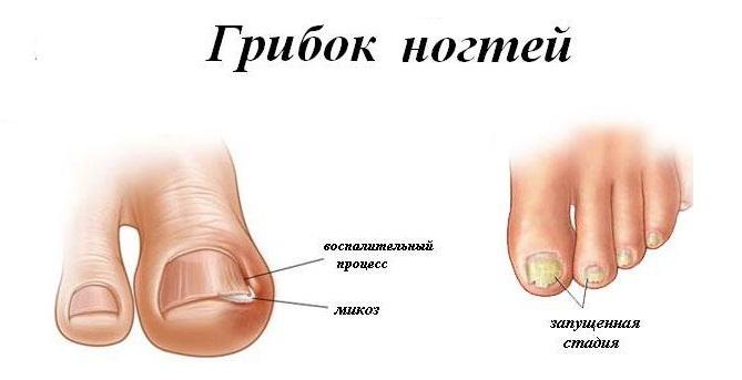 Грибок на ногте большого пальца ноги у ребенка фото