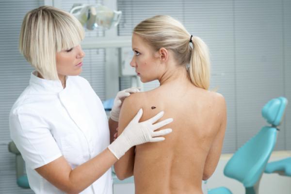 Причины появления родинок на теле человека, признаки злокачественности.