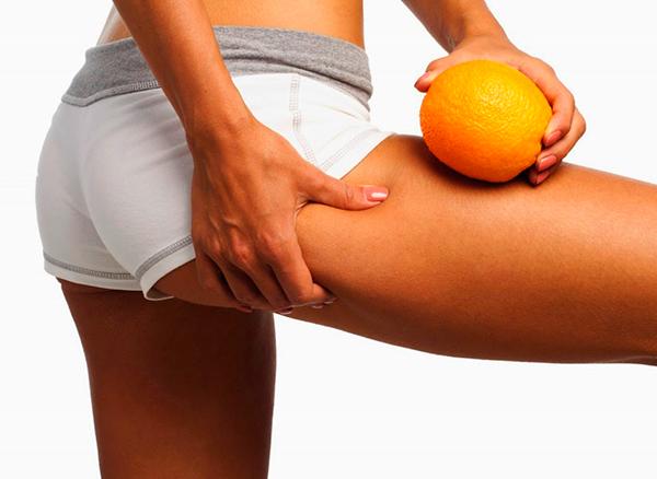 Целлюлит: Что поможет в борьбе с апельсиновой коркой?