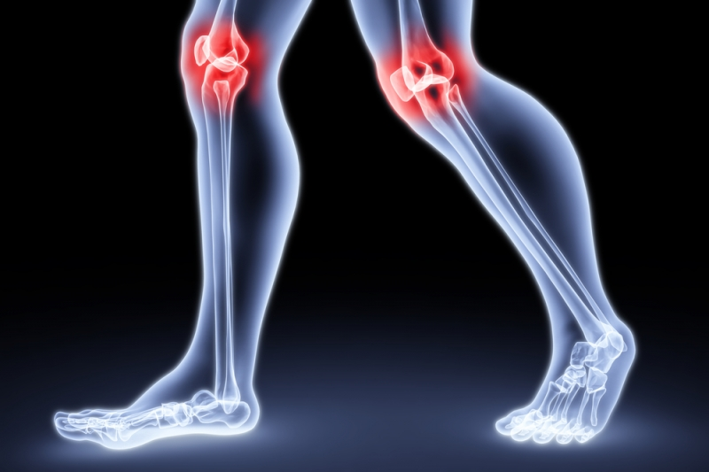 Как определить и лечить артрит.