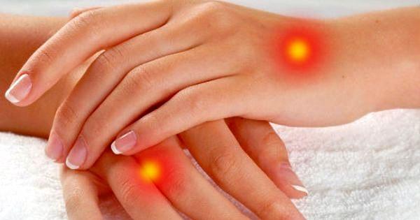Как отличить экзему от других заболеваний кожи?
