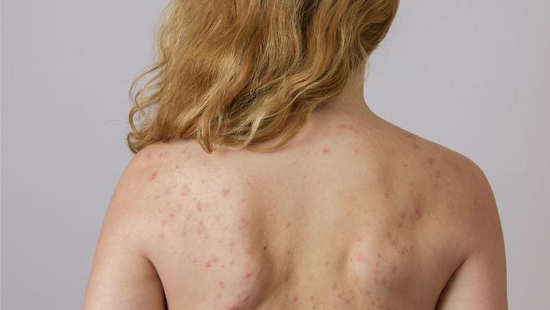 Угревая сыпь на спине причины и методы борьбы с ней